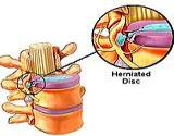 photo of a chart of healthy disc and herniated disc