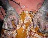 A photo of severe case of psoriasis on hands of African American