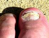photo of foot in sand with toenail fungus