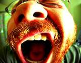 photo of a man yawning because of sleep disorder