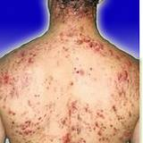man's back covered in acne