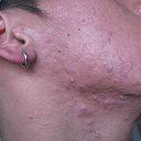 acne on boys neck