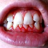 photo of a closeup view of gingivitis