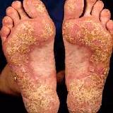 photo of severe case of psoriasis on feet