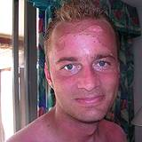 photo of a man with severely sunburned face in need of natural sunburn relief
