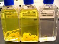tapeworm in lab bottles