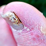 photo of a man's big toes with severe toenail fungus
